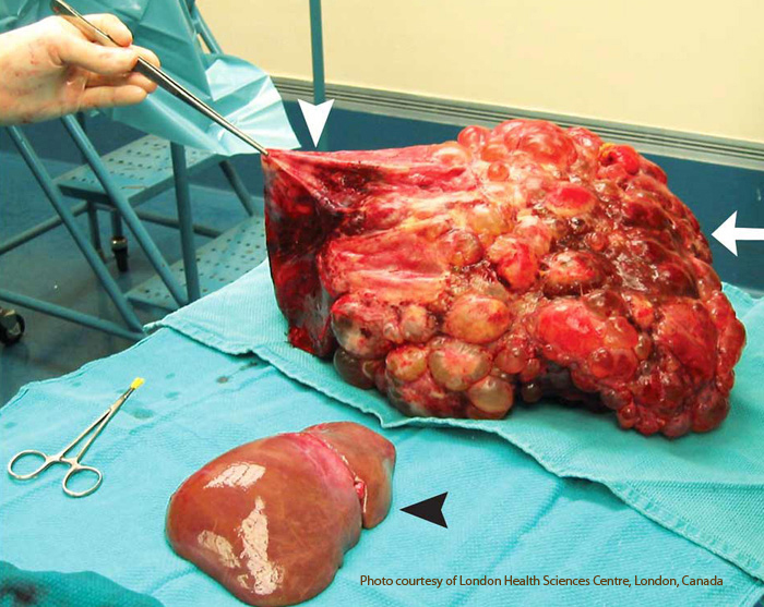 After Gall Bladder Removal Surgery No Organ Foods